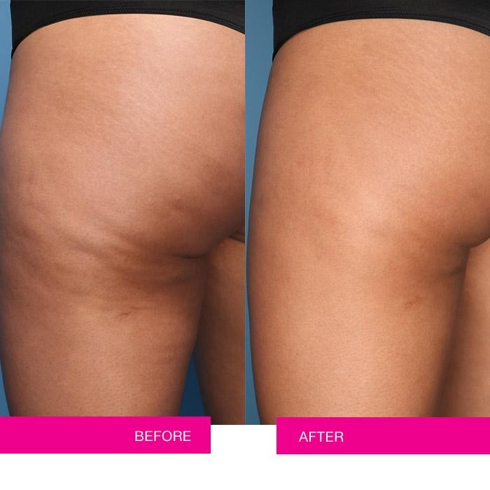 Endermologie before and after treatment picture