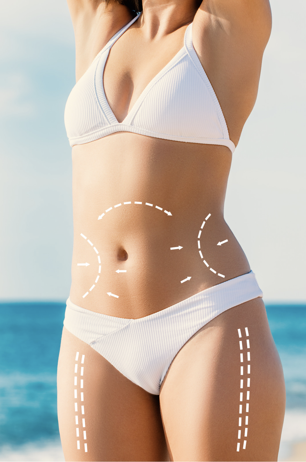 Woman in a white swimsuit with surgical lines on her abdomen