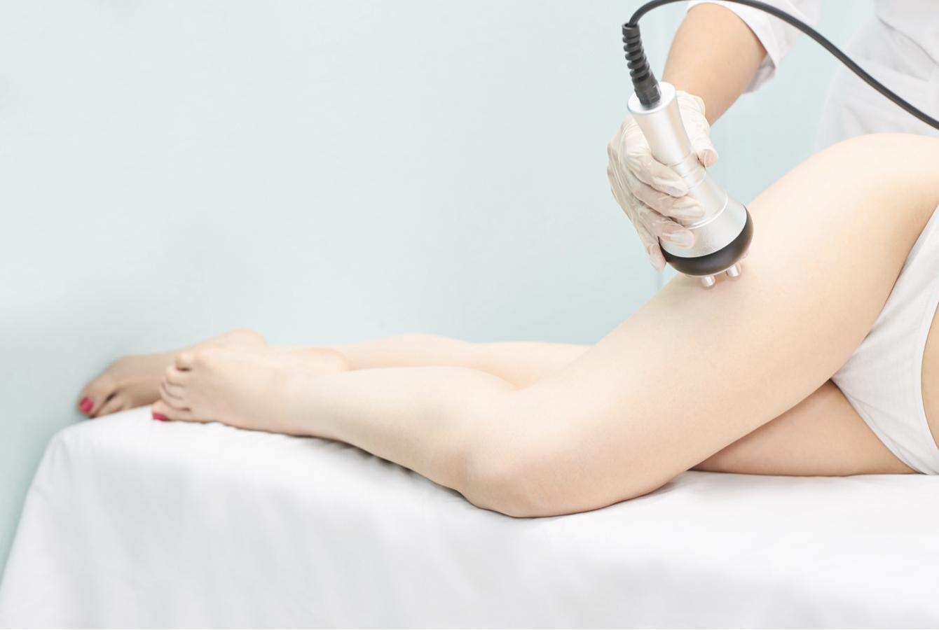 Ultrasonic Cavitation treatment on the upper thigh